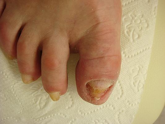 Oczyszczenie paznokcia zmienionego chorobowo zdjęcie po