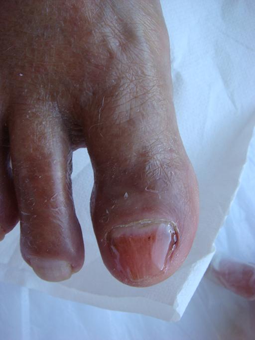 Rekonstrukcja płytki paznokciowej masą żelową zdjęcie po