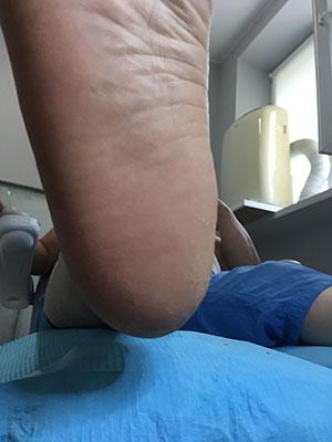 Terapia pękających pięt zdjęcie po