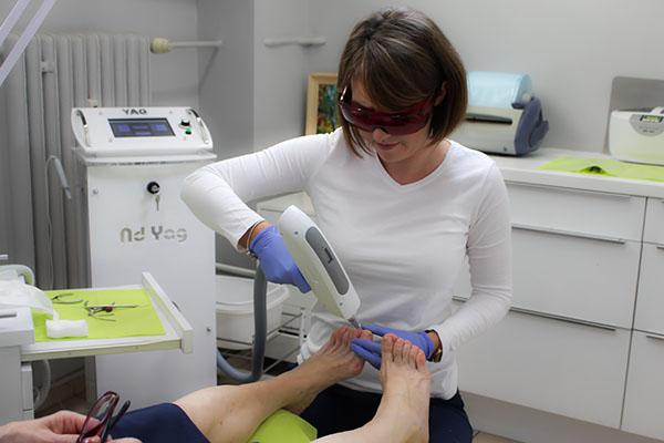 Zabieg laserowy na paznokieć zmieniony chorobowo zdjęcie przed